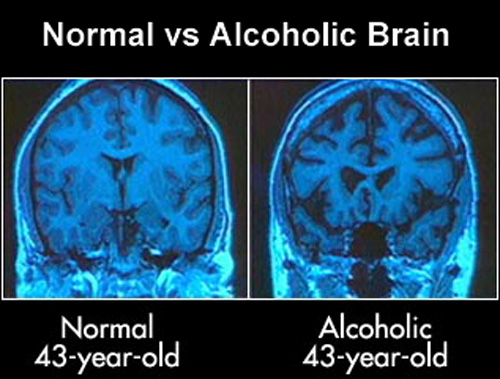 the effects of underage drinking on the brain Well, science has shown that alcohol can poison brain cells and alter the brain's  white matter in adult alcoholics  cause or effect  samhsa fact sheet on  binge drinking nih fact sheet on underage drinking (pdf, 305.