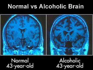 Normal vs Alcoholic brain graphic